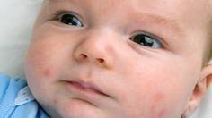 Tout savoir sur les petits boutons de bébé - Bébé - 0-12 mois - Santé - Infections, maladies et bobos - Mamanpourlavie.com