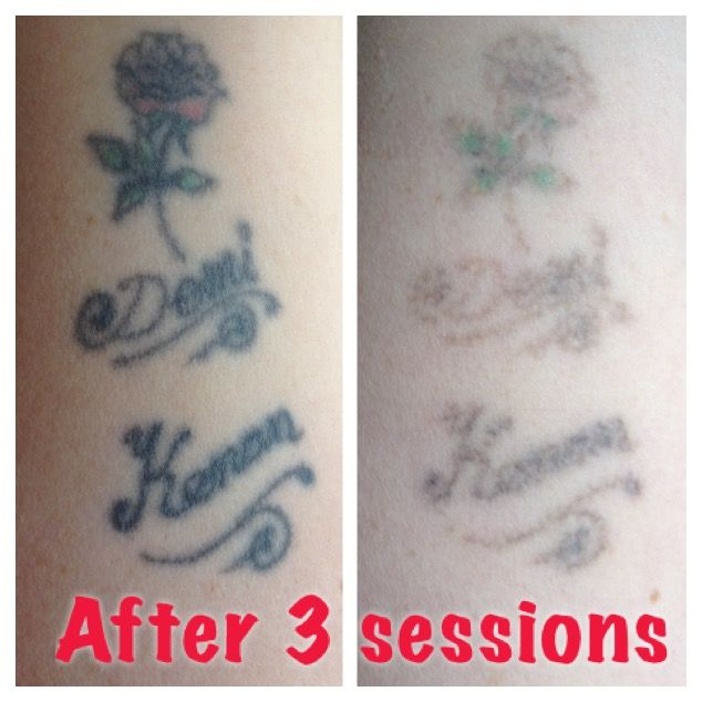 Amazing results after only 3 sessions with the laser for How long is a tattoo removal session