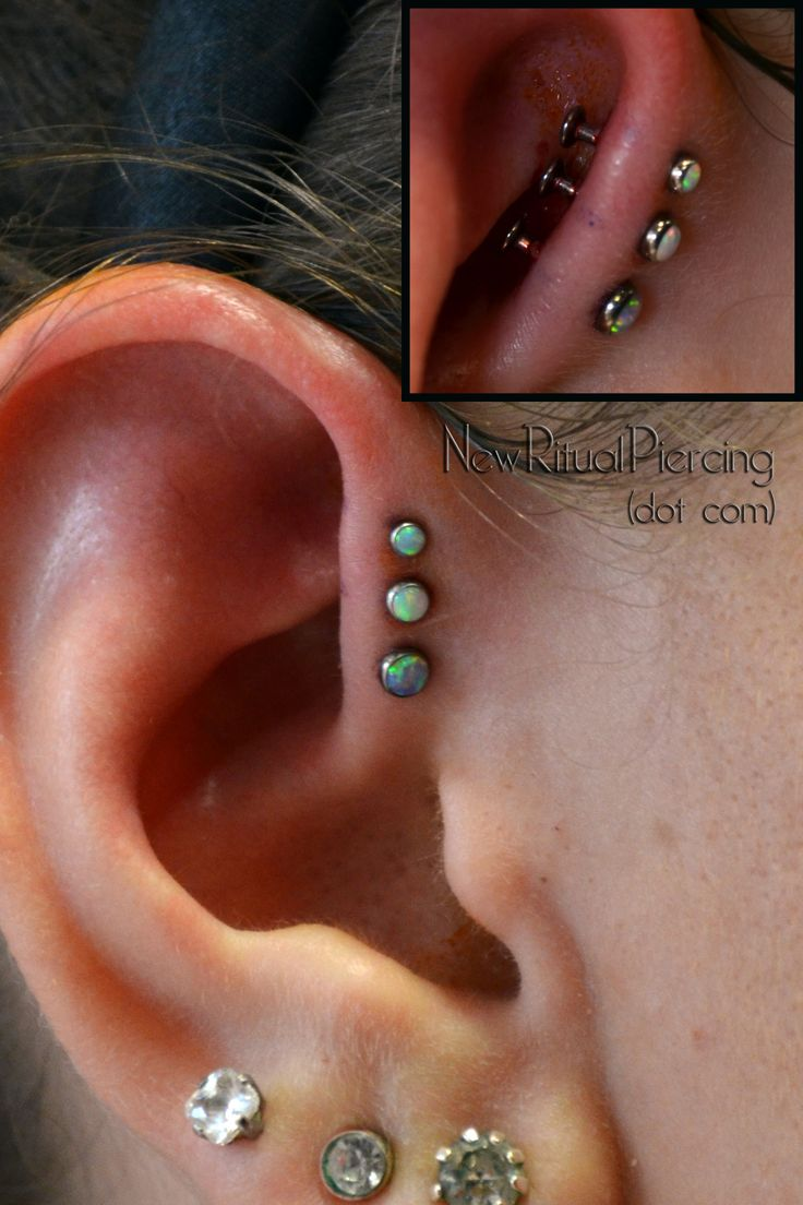 Sorry for the GV and Iodine that got left behind, but this is a little too cool to not post. Three forward helix piercings by Victor VanOrden at Olde Line Tattoo in Hagerstown, MD. Jewelry by NeoMetal (3.0mm #10 Opal, 2.5mm, and 2.0mm, #17 Opals)