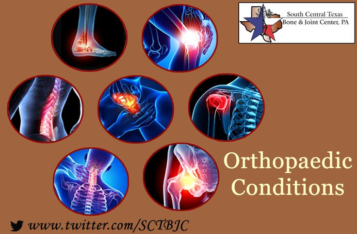 South Central Texas Bone and Joint Center take good care of problems related to the #SportsInjuries, Shoulder pain, #Kneepain and so on. When you feel pain or discomfort during or after exercise, household chores and other activities? Then meet Dr. Erick M. Santos and get your body back to healthy.