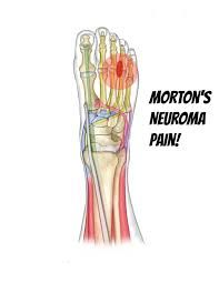 Are you #Suffering from #Morton's #Neuroma #pain?  Now no more pain.. Yes,, here is the solution, wear #kenkoh shoes which #reduces your all #pain and give your #feet a beautiful look