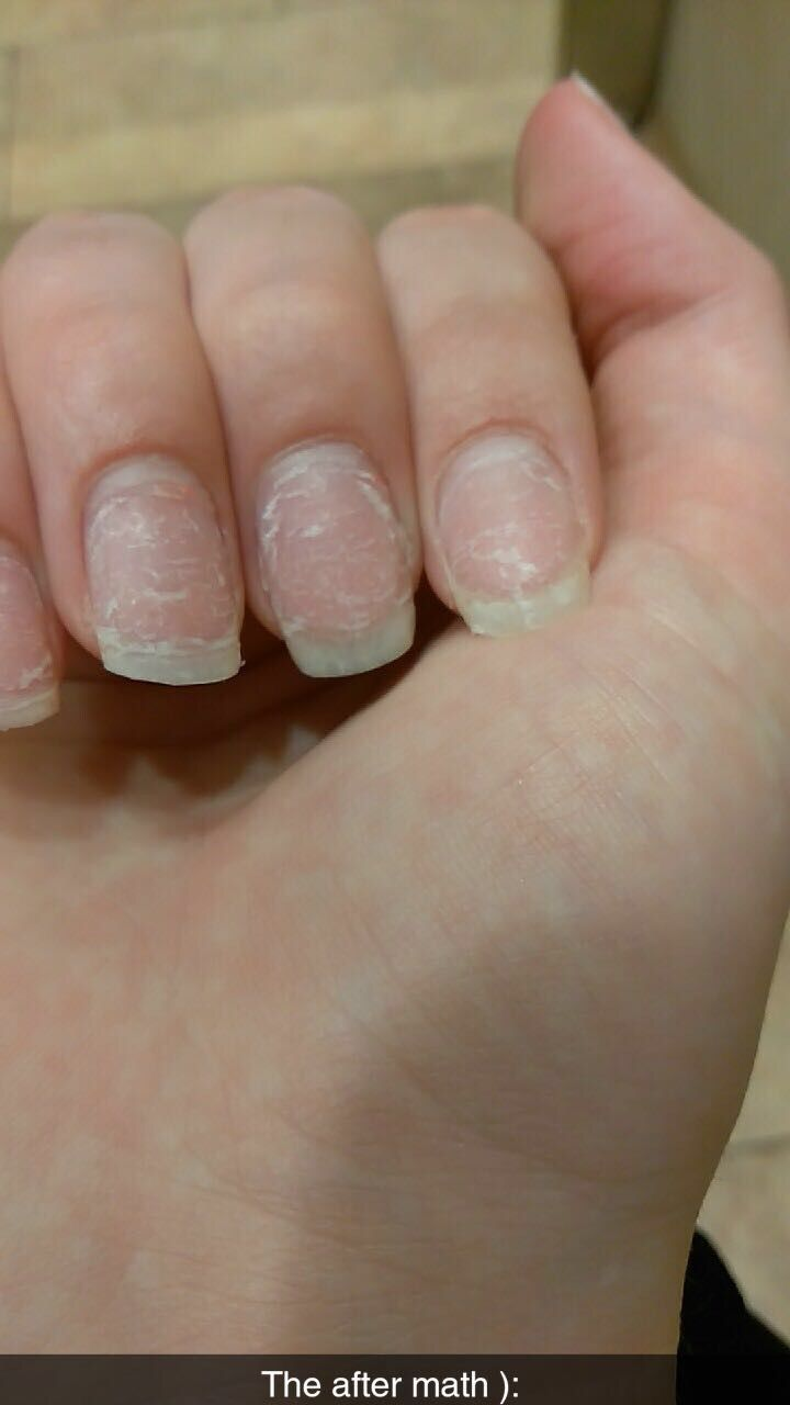 After Math Of Taking Acrylics Off Nails Beauty Acrylic