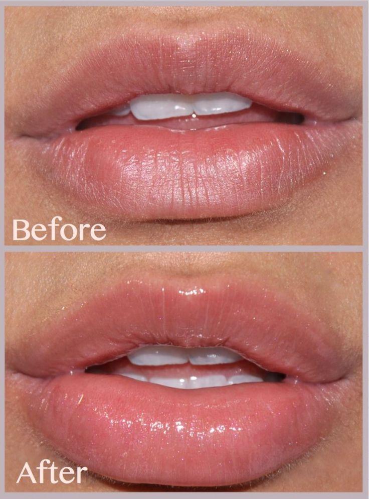Huda Beauty Too Faced Lip Injection B&A