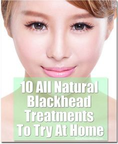 10 All-Natural Blackhead Treatments To Try At Home