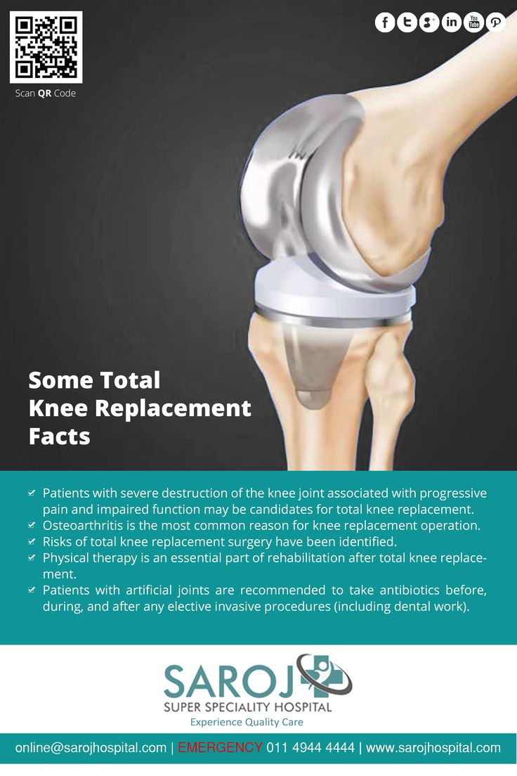 Here are some quick facts related to Total Knee Replacement. Read on. Share your information here - http://www.sarojhospital.com/orthopedic.html