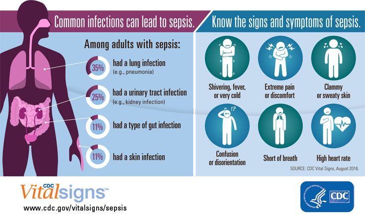 Sepsis is a complication caused by the body's overwhelming and life-threatening response to infection, which can cause organ failure and death. Healthcare providers can help prevent sepsis and improve early recognition of sepsis. Think sepsis, time matters.