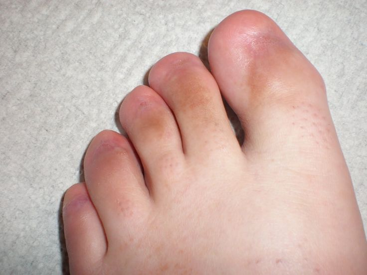 Bump On Big Toe From Shoes