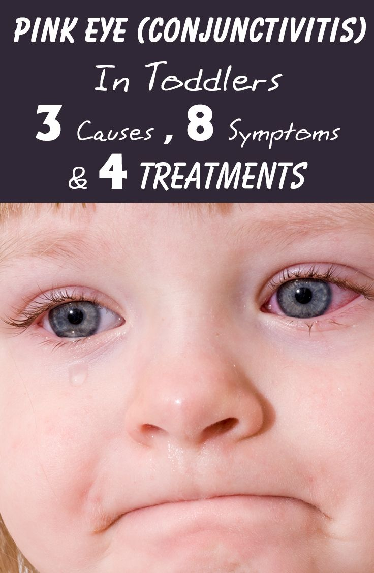 Pink Eye (Conjunctivitis ) In Toddlers - 3 Causes, 8 Symptoms & 4 Treatments You Should Be Aware Of