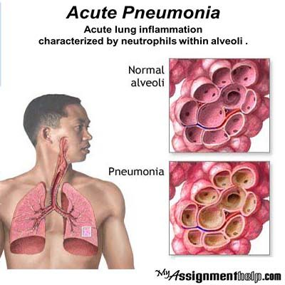 With more than 450 million people being affected globally and more than 4 million deaths occurring every year, pneumonia is fast becoming one of the most potent adversaries of public health. Perhaps what is more worrisome is the fact that medically pneumonia is not a complicated disease and can be treated with proper medication and diet.