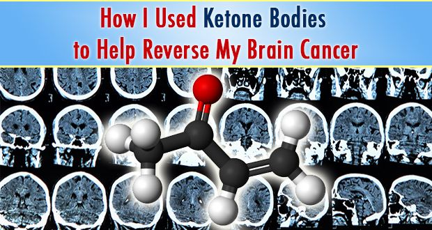In this article, Dr. Charles Majors talks about how he used ketone bodies to help reverse his stage-4 bone marrow cancer that metastasized to his brain. You'll be quite amazed - you're going to want to read this.