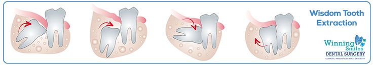 Wisdom tooth extraction removal related to wisdom teeth which are the final set of molars generally appearing in the late teens to early twenties.  Since there is not enough space in the mouth for the teeth, a variety of problems can develop.  These teeth often come in as impacted, and can cause potential damage to the adjacent teeth.  Therefore, they require removal.