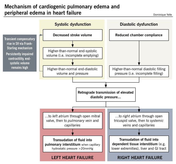 Mechanism of cardiogenic pulmonary edema and peripheral edema in heart failure (via McMaster Pathophysiology Review www.pathophys.org)