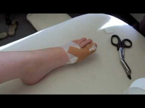 Prevent and treat early Bunions with taping.