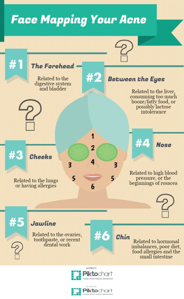 17 Best Ideas About Face Mapping On Pinterest Acne Face