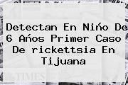 http://tecnoautos.com/wp-content/uploads/imagenes/tendencias/thumbs/detectan-en-nino-de-6-anos-primer-caso-de-rickettsia-en-tijuana.jpg rickettsia. Detectan en niño de 6 años primer caso de rickettsia en Tijuana, Enlaces, Imágenes, Videos y Tweets - http://tecnoautos.com/actualidad/rickettsia-detectan-en-nino-de-6-anos-primer-caso-de-rickettsia-en-tijuana/