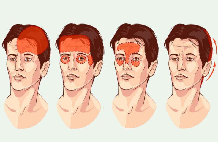 6 типов головной боли, которые ни в коем случае нельзя игнорировать!