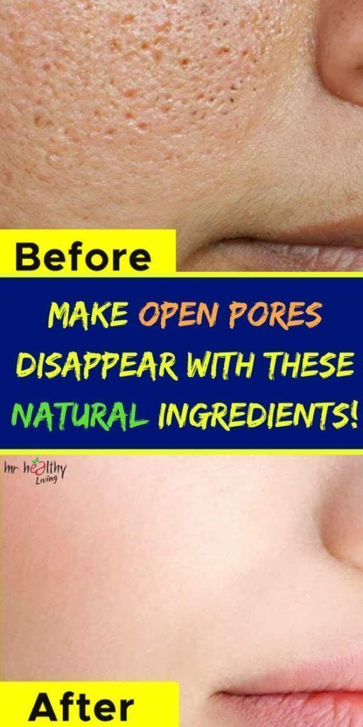Simple tips to make your pores disappear in seconds
