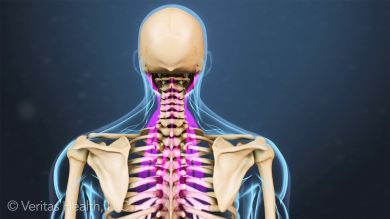 Examine the causes of a stiff neck based on the symptoms you have and what treatment options are available to remedy the situation.