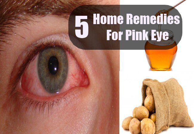 Natural At Home Remedies For Pink Eye