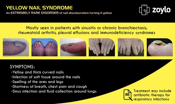 YELLOW NAIL SYNDROME - An EXTREMELY RARE DISORDER of nail discolouration turning it yellow.!