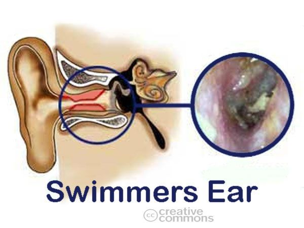 49 best ear infections images on pinterest middle ear ear home remedies for ear infection ccuart Image collections