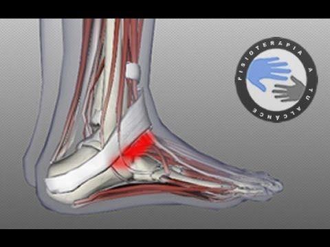Esguince de tobillo, ¿que es y que ocurre al torcernos un tobillo? / Fisioterapia a tu alcance
