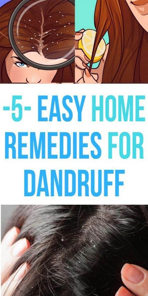 5 Easy Home Remedies For Dandruff Issue!