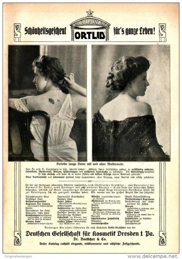 Original-Werbung/ Anzeige 1909 - 1/1 SEITE: ORTLID /DEUTSCHE GESELLSCHAFT FÜR KOSMETIK BOETTCHER- DRESDEN…
