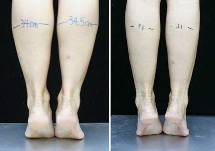 how to slim your calf
