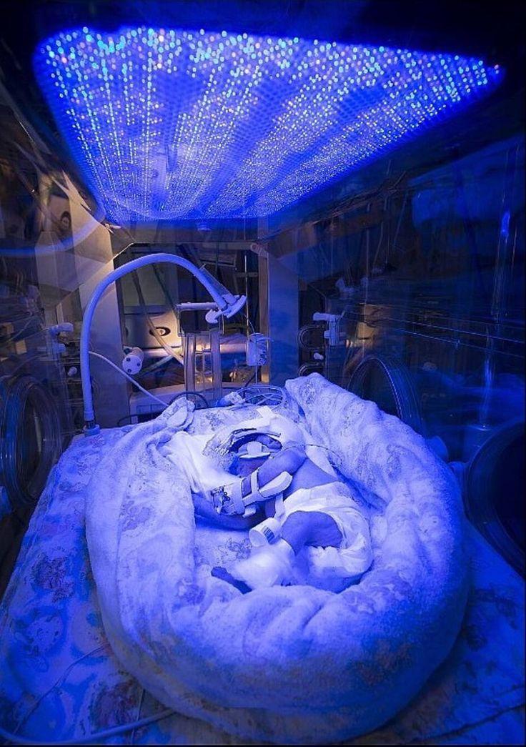 David Bishop, Royal Free Hospital, Londres - Um bebê recém-nascido recebe fototerapia no Hospital Barnet, em Londres. O bebê nasceu prematuramente e tem icterícia, um problema comum que faz com que resíduos da destruição de glóbulos vermelhos do sangue torna a pele e olhos amarelos. Esse resíduo normalmente é removido pelo fígado, mas esse órgão não está completamente desenvolvido nos recém-nascidos, e às vezes não conseguem fazer o serviço com eficiência. Local: Londres, Reino Unido…