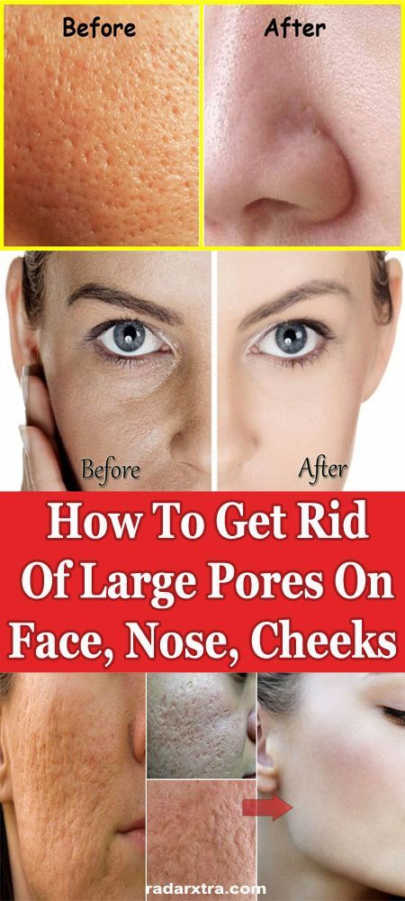 How to Get Rid of Clogged Pores ? – Womenbelle
