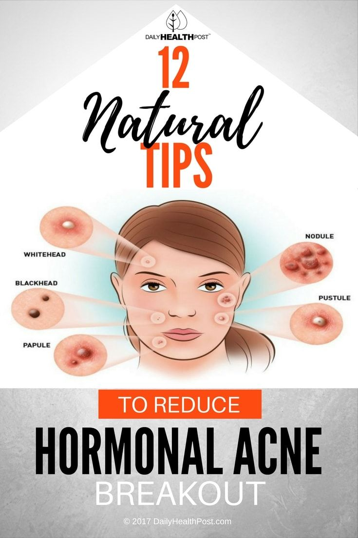 Best Natural Remedies For Hormonal Acne