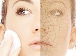 # Skincare Recipes - The recipe for dry skin care - #the #the # for ...  -  Hautpflege-Rezepte