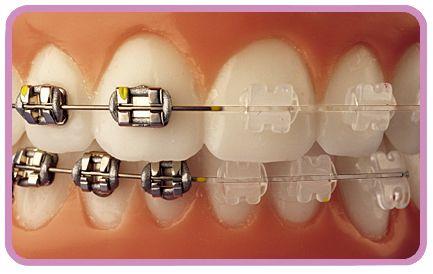 Ortodoncia estetica en Madrid, brackets metalicos, brackets de porcelana, brackets de zafiro ortodoncia estetica invisible.