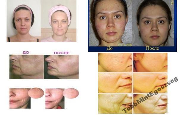 Skindulgence 30 perces arcfeszesítő rendszer