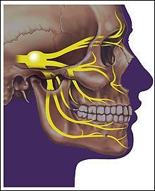 YES, THIS IS PART OF FIBROMYALGIA TOO , nerve pain in face and teeth,its never ending!!!