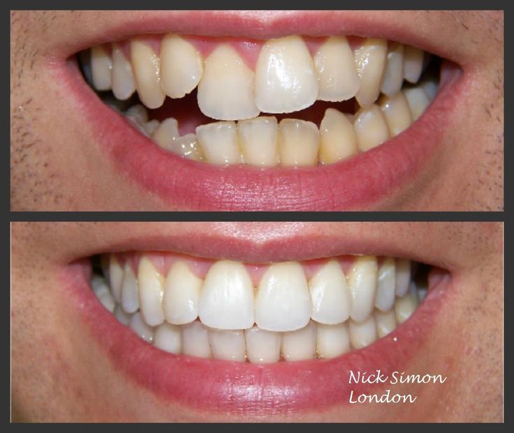 how to make your teeth crooked fast