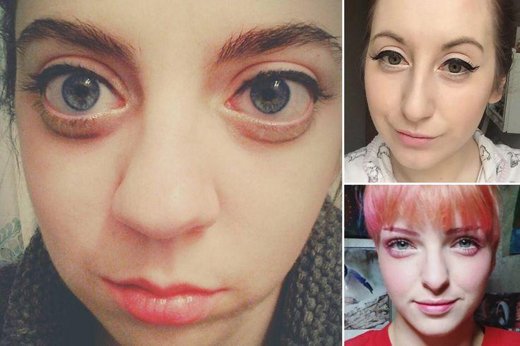 La nueva moda de los 'Ojos cansandos': Mujeres se inyectan