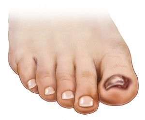 Toenail Falling Off? Causes and Treatments