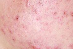 Macchie causate da brufoli e acne: rimedi naturali e non:   1. Papaia;  2. Limone;  3. Esfoliazione;  4. Vitamina E; 5. Acido glicolico;  5. Protezione solare;   Per saperne di più >>>  http://www.piuvivi.com/bellezza/macchie-lasciate-brufoli-acne-rimedi-naturali-non.html <<<