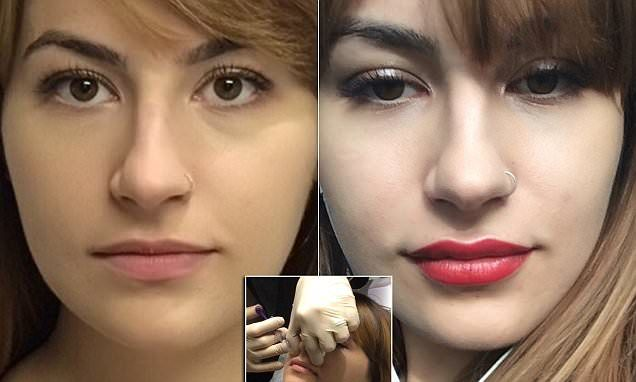 Can Kylie Jenner lip fillers EVER look natural? FEMAIL tries Juvederm