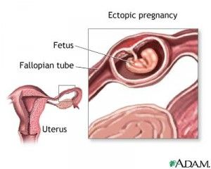 Healing From Ectopic Pregnancy. You never think it's going to happen to you