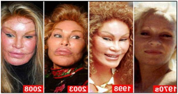 Cat Lady Plastic Surgery Before & After