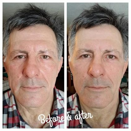 #instantlyageless #before #after #pic #he #looks #alive #rejuvenated #wow #seeing #is #believing