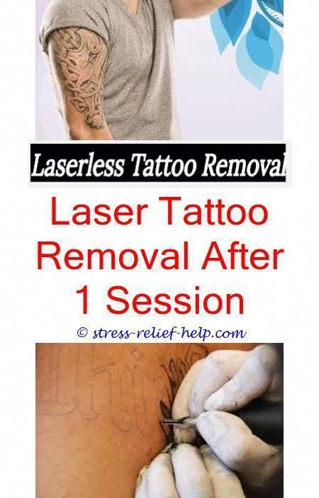 How To Remove My Eyebrow Tattoo Much Do Tattoo Removals Hurt