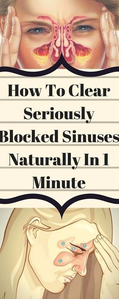 How To Clear Seriously Blocked Sinuses Naturally In 1 Minute