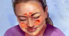comment-soulager-votre-infection-des-sinus-en-20-secondes