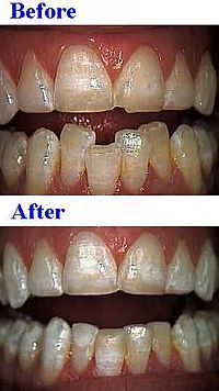 Free Cosmetic Dentistry Wow .. its amazing what you can find while searching out images for dental implants and more