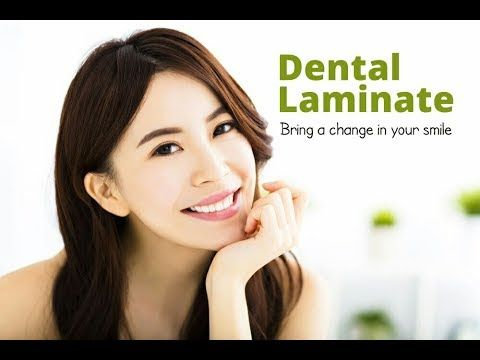 Dental Laminate  How To Get Your Broken Front Teeth Fixed | The Star Den...