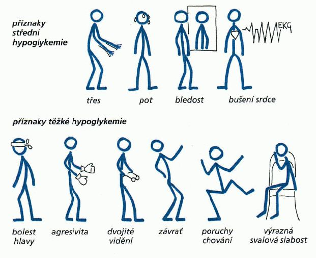 Příznaky střední hypoglykemie